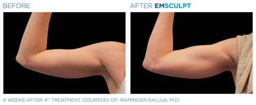 Emsculpt_PIC_Ba-card-female-arms-078_ENUS100